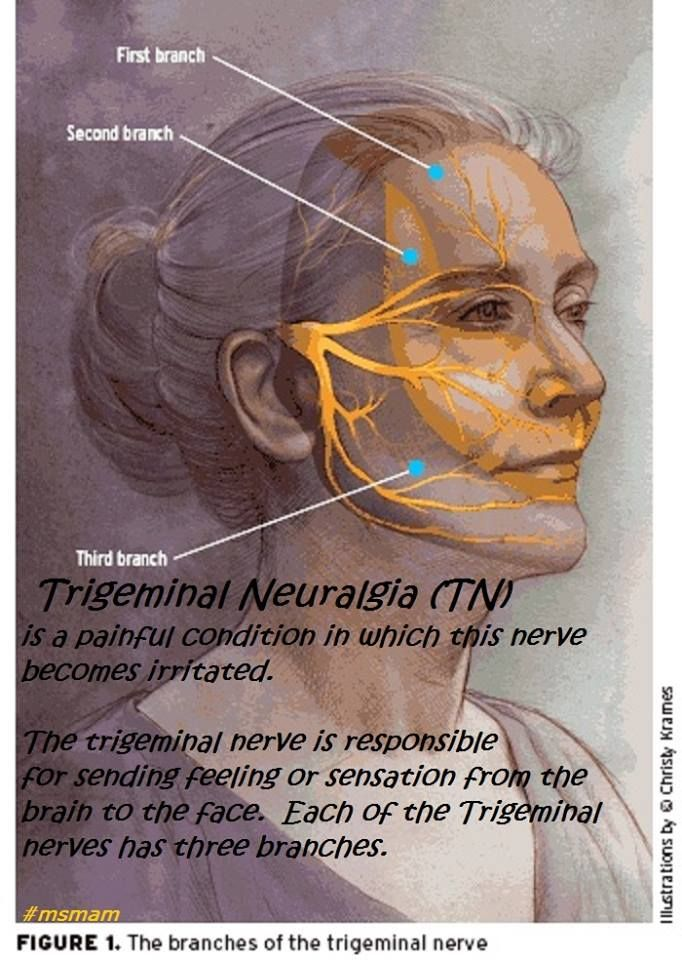 Trigeminal Neuralgia (TN)  is a painful condition in which this nerve becomes irritated. The trigeminal nerve is responsible  for sending feeling or sensation from the brain to the face. Each of the Trigeminal nerves has three branches. ‪#‎msawareness‬