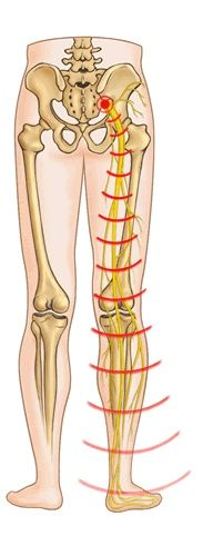 How To Solve Sciatic Pains