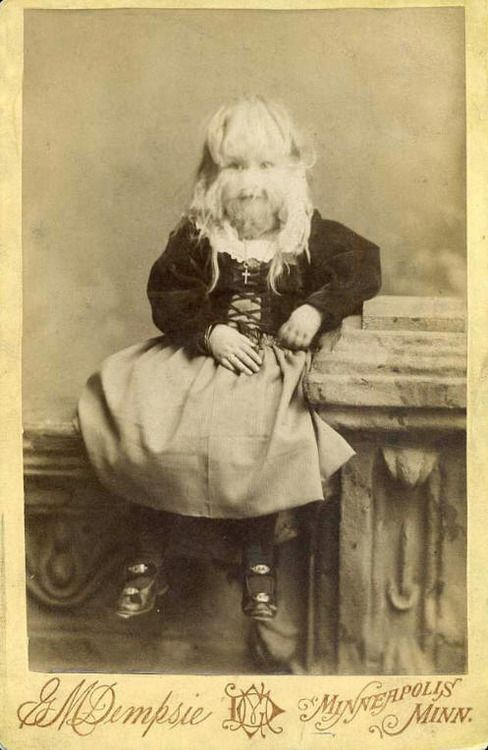 """Alice E. Doherty was born in 1887 with a rare genetic mutation called """"hypertrichosis"""", or """"werewolf syndrome"""", which causes excessive body hair. She was billed as """"The Minnesota Woolly Baby"""". At birth, she was covered all over in two-inch long, silky blonde hair. She began exhibiting as a sideshow """"freak"""" at the age of two."""