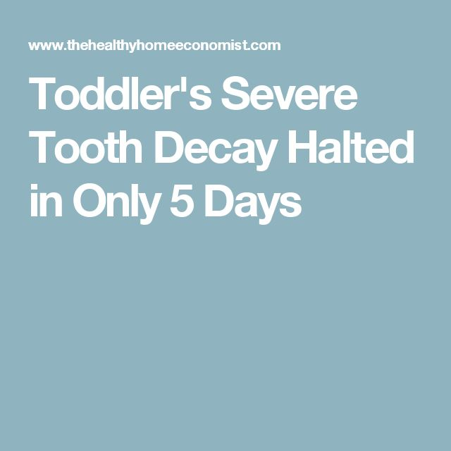 Toddler's Severe Tooth Decay Halted in Only 5 Days