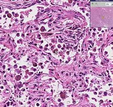 Histopathology Lung --Organizing pneumonia