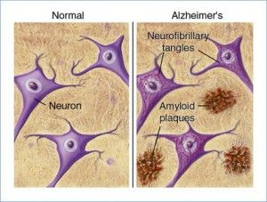 Alzheimer's disease pathophysiology