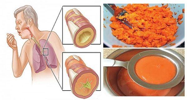Oude Zelfgemaakte Siroop Die slijm verwijdert uit de longen en hoest geneest!