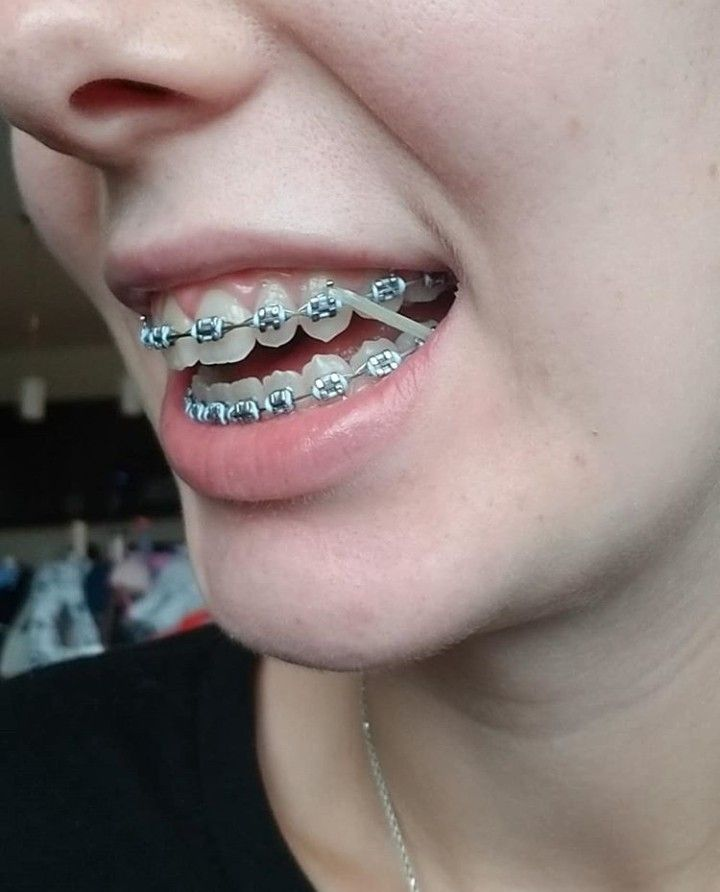 Park Art|My WordPress Blog_What Are Rubber Bands Used For Braces