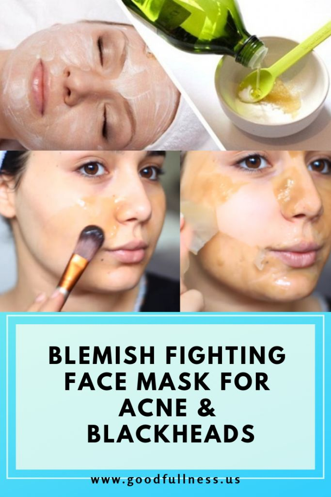 BLEMISH FIGHTING FACE MASK FOR ACNE & BLACKHEADS …