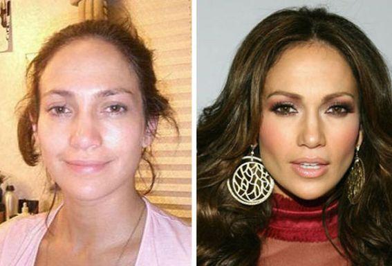 before after plastic surgery photos Jennifer Lopez
