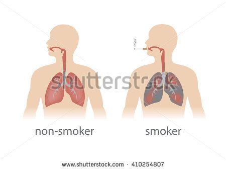 smoker and non smoker lungs comparison. vector format. - stock vector