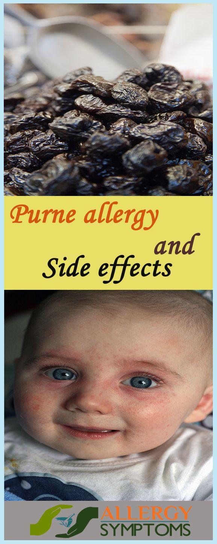 Prune Allergy Symptoms #Prune #PruneAllergy http://allergy-symptoms.org/prune-allergy/