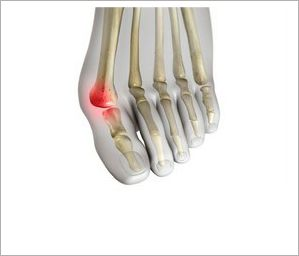 1000+ images about MISI Foot Treatments on Pinterest ...