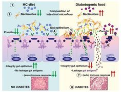 Tight junctions, intestinal permeability, and autoimmunity: celiac disease and type 1 diabetes paradigms - http://www.ncbi.nlm.nih.gov/pubmed/19538307