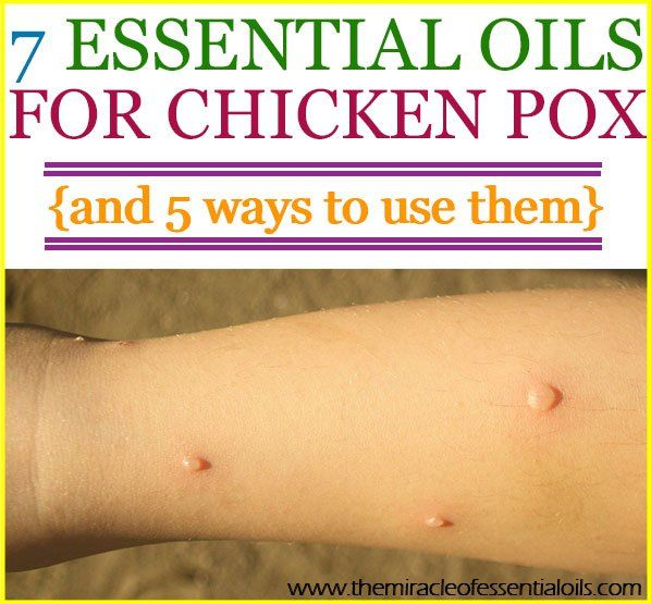 how to stop chicken pox itching in hair