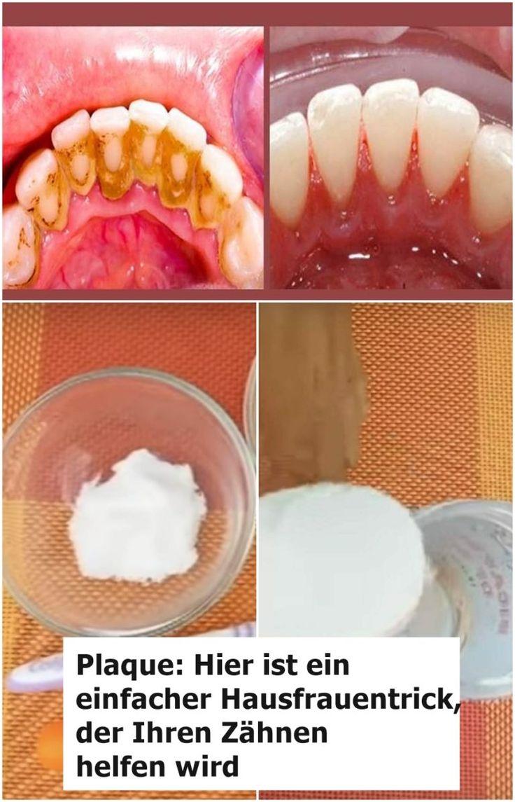 Plakette: Hier ist ein einfacher Trick für Hausfrauen, der Ihren Zähnen hilft …   – Hausmittel