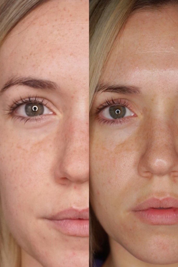 Photorejuvenation IPL Before and After Pictures | Chemical ...