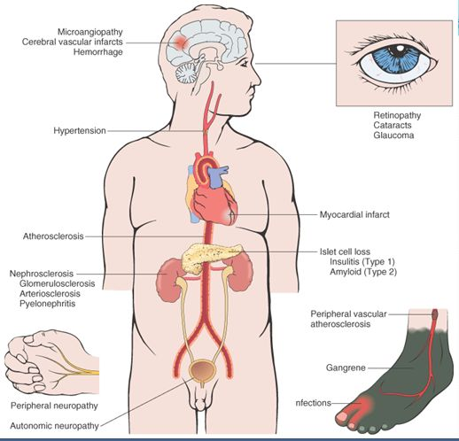 renal failure essays Kidney failure is a very deadly disease but may be cured simply by following set instructions and going through treatments doctors recommend cite this essay to export a reference to this article please select a referencing stye below:.