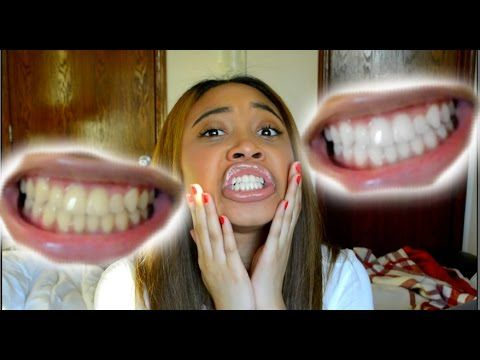 How To Whiten Teeth in 5 Minutes! (Works 100%) - YouTube