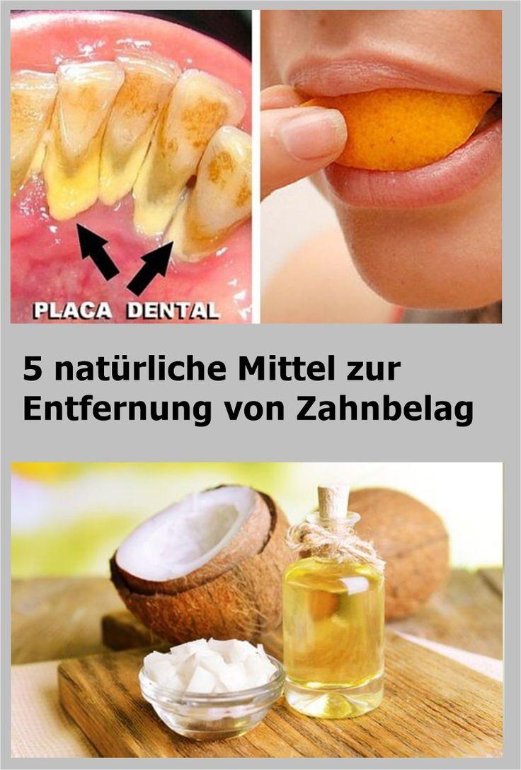 5 natürliche Mittel zur Entfernung von Zahnbelag | drndex.com