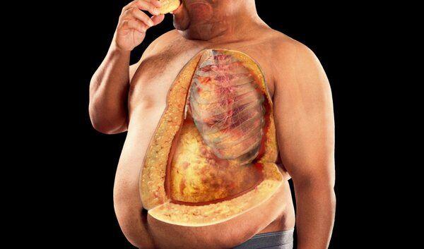 Сжечь Жир В Печени. Ожирение печени: причины, симптомы и лечение