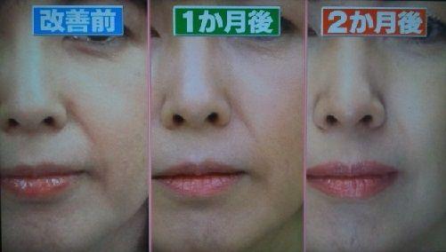 顔 の たるみ 改善 ためして ガッテン 頬のたるみをとるには?「ためしてガッテン」の筋トレ法がマジで凄す...