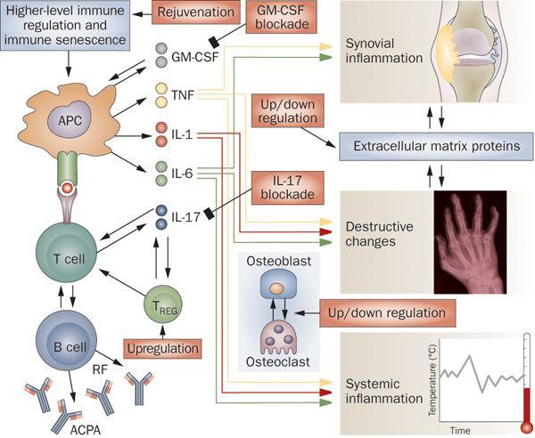 Rheumatoid arthritis | Causes, symptoms, treatments