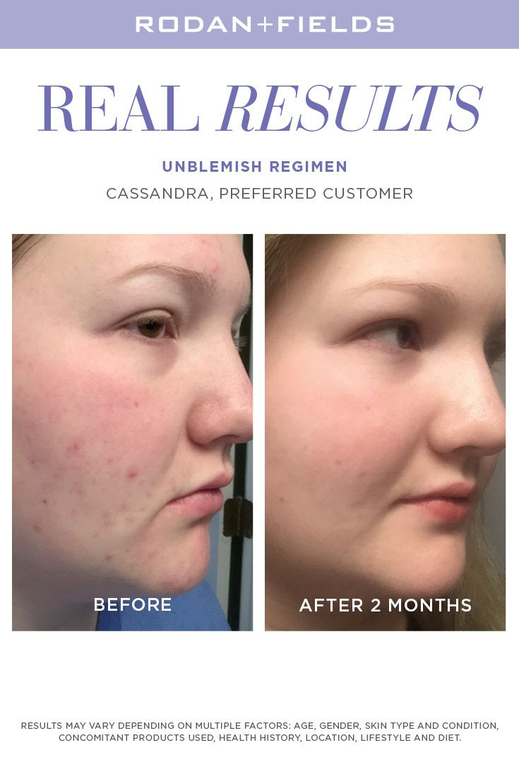 UnBlemish    take control of your acne, blemishes and