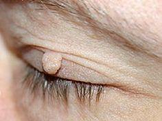 Basterà del semplice aceto per porre finalmente rimedio ai fibromi che popolano la vostra pelle. Ecco come fare   Fibromi: ecco l'incredibile rimedio per eliminarli definitivamente - ?