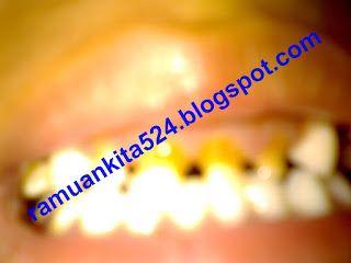 Cara Alami Mengobati Sakit Gigi  Source: https://ramuankita524.blogspot.co.id/2016/01/cara-alami-mengobati-sakit-gigi.html