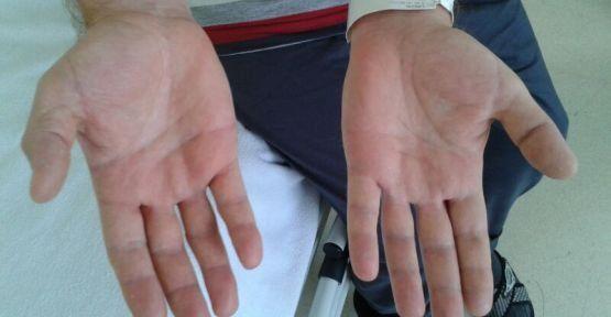 romatoid-artrit