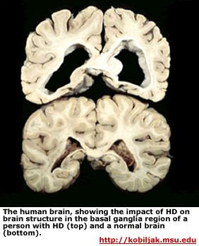 Huntington's Disease- inherited condition in which nerve cells in the brain break down over time