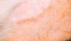 Giant cell arteritis (temporal arteritis) - NHS Choices