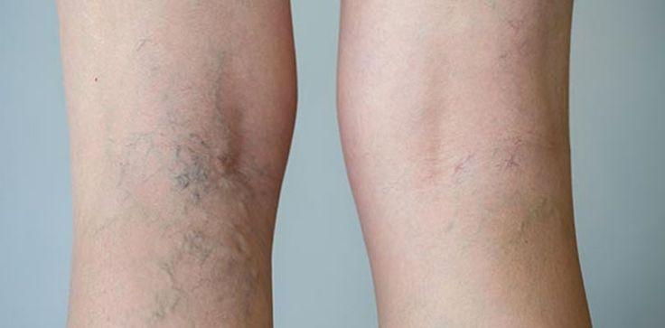 Les varices sont un problème répandu et qui concerne 50% des personnes d'âge moyen. Elles se déclarent généralement dans les jambes. Si on se tient debout trop longtemps, la pression qu'on met sur nos jambes se multiplie par 10. Les femmes sont plus touchées par les varices, surtout à la fin de leur grossesse. Avec ...
