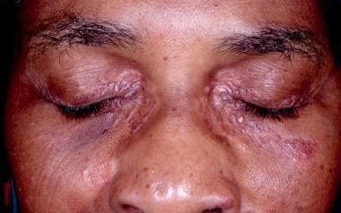 El Lupus Pernio de la Sarcoidosis