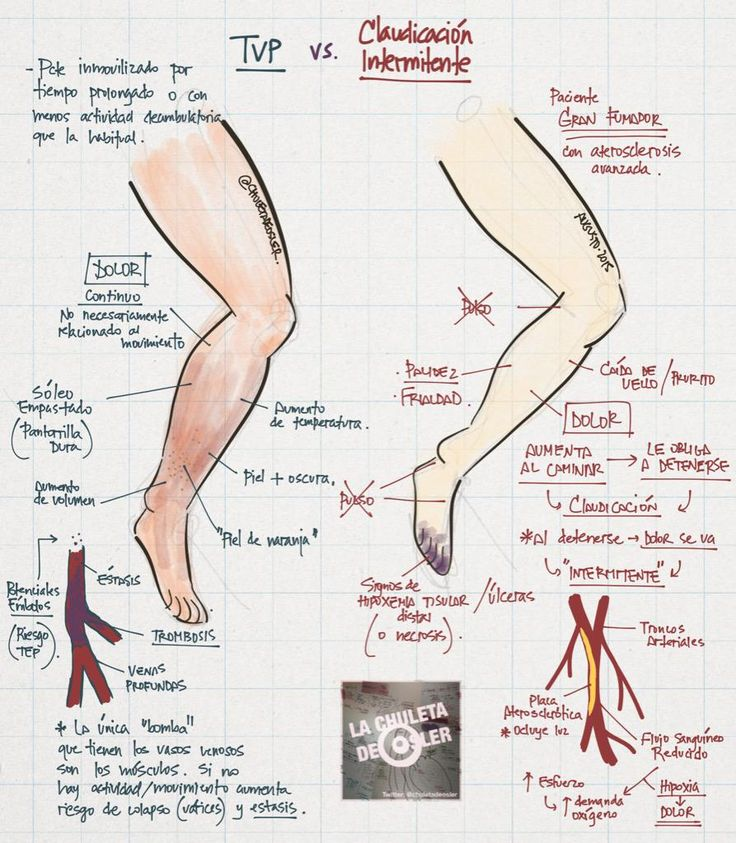 Trombosis venosa profunda vs Claudicacion intermitente