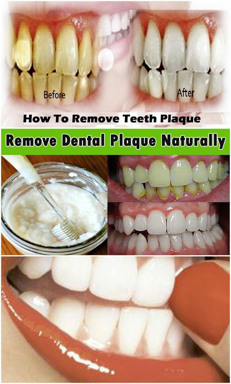 REMOVES PLAQUE AND WHITEN YOUR TEETH IN 15 MIN WITH THIS