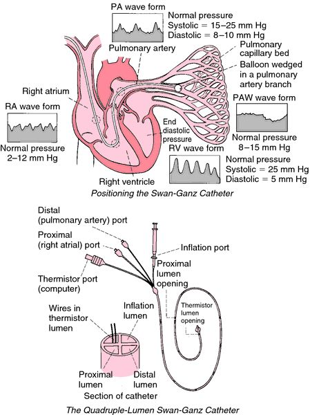 "Swan-Ganz catheter | The pulmonary artery catheter (PAC) is frequently referred to as a Swan-Ganz catheter. PAC is the insertion of a catheter into a pulmonary artery. Its purpose is diagnostic; it is used to detect heart failure or sepsis, monitor therapy, and evaluate the effects of drugs. The pulmonary artery catheter allows direct, simultaneous measurement of pressures in the right atrium, right ventricle, pulmonary artery, and the filling pressure (""wedge"" pressure) of the left atrium."