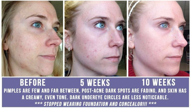 Get rid of acne and fade dark spots and acne scars with our Unblemish Regimen! With our 60 day, empty bottle, money back guarantee, try our products risk free!