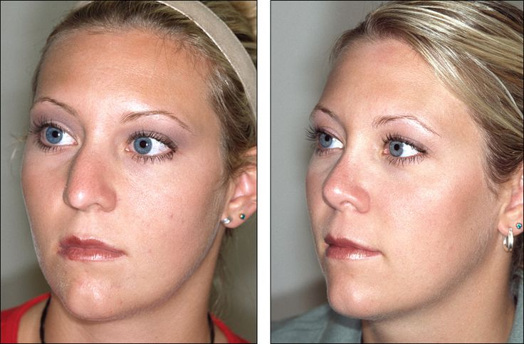 The Rhinoplasty Society - Top Rhinoplasty Surgeons - Nose ...