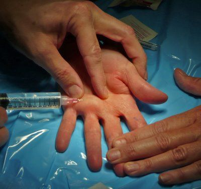How long does a trigger thumb surgery take?