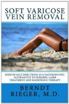 Soft varicose vein removal