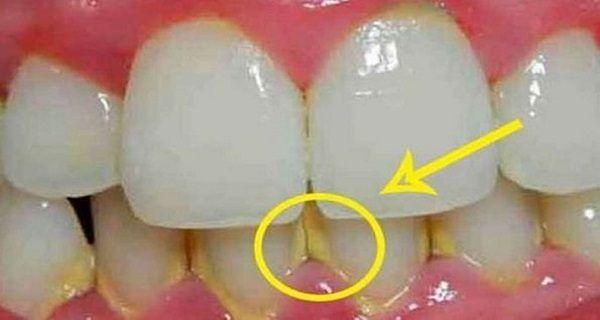 Κοινοποιήστε στο Facebook  Η πλάκα είναι ένα συνηθισμένο ζήτημα αισθητικής, τόσο για τους άνδρες και τις γυναίκες. Είναι μια κολλώδης «ταινία» που συσσωρεύεται στα δόντια σας και περιέχει βακτηρίδια που αν αφεθεί χωρίς θεραπεία, μπορεί να οδηγήσει σε ασθένειες...