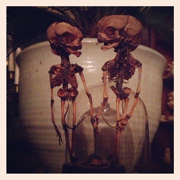 Fetal skeletons in love