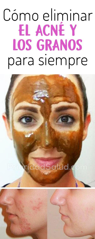 mascarillas naturales para el acne y espinillas