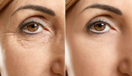 Geheimnis der Schönheit: Supermaske um Augenringe und Taschen unter den Augen radikal zu beseitigen – Gesundheit