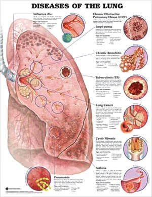 Diseases of the Lung anatomy poster for exam room or classroom