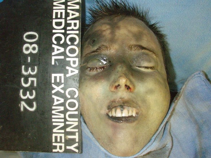 Travis Alexander gunshot to the temple. This is what he looked like after Jodi stabbed