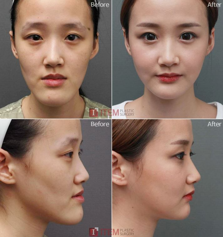 [Facial contouring -Two Jaw surgery] Plastic surgery in Korea, Cosmetic surgery in Korea, Cheeck bone reduction surgery in Korea, Zygoma reduction surgery in Korea, facial bone contouring in Korea,V-line surgery in Korea, Jaw reduction, Chin reduction, correction of facial asymmetry bone surgery in korea, before and after pictures