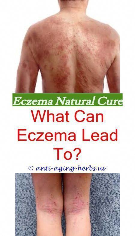 severe eczema treatment i hate eczema - aquaphor eczema cream signs