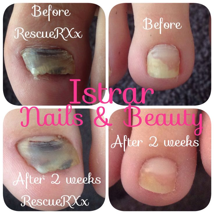 Amazing results with CND RescueRXx!