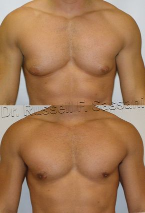 #Gynecomastia before and after cosmetic surgery performed by Board Certified Plastic Surgeon Dr. Russell F. Sassani. #HowToGetRid