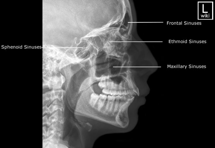 Radiographic Anatomy - Sinuses - Lateral
