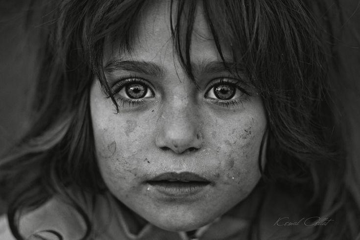 *** - Syrian Refugees in Turkey.
